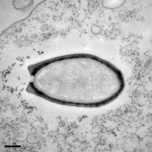 Pandoraviruses